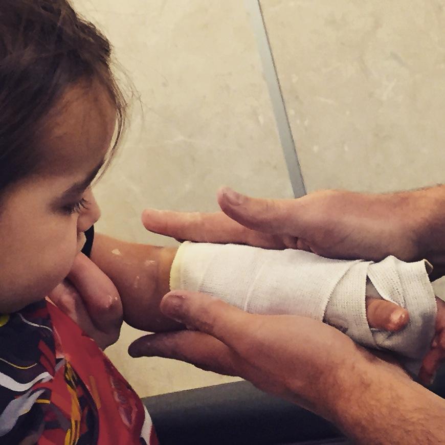 Nephew's broken arm.